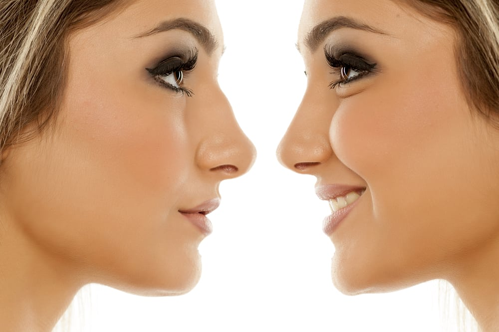 THE ULTIMATE GUIDE TO RHINOPLASTY A nose job is one of the most opted for cosmetic surgeries. Though it is popularly known as a nose job, the procedure is called Rhinoplasty Toronto. This cosmetic surgery not only improves the outward appearance of the shape by changing the structure of the nose, but it also improves the functioning of the nose. The procedure can help to fix a droopy nose or widen or narrow the size of the nostrils. Rhinoplasty can also improve difficulty in breathing and chronic nasal congestion. The procedure is personalized according to the requirements of the patient. Here is all that you need to know about rhinoplasty surgery. What are the techniques that are used? The nose job is usually carried out under general anesthesia. In some cases, it might be performed under local anesthesia and IV sedation. The procedure can last from one to three hours, depending on how complex the procedure is. For minimally invasive results, a closed method is used. The procedure is performed by making small incisions inside the nose. This type of rhinoplasty is carried out with utmost precision and care. The other approach to performing rhinoplasty is the open method, which provides more access to the surgeon. This is done by opening the skin on top of the nose by making a small inverted V incision between the nostrils. Both the approaches of performing rhinoplasty sculpt the cartilage, bone, and soft tissue to achieve the desired results. What does recovery look like? Before undergoing the procedure, the surgeon will discuss and plan each stage with you, beginning from planning the procedure to the recovery. It is advised to take at least a week off from your schedule to recovery from the procedure. During the first week of the surgery, you might experience some stuffiness, bleeding, bruising, and swelling. You might feel some discomfort, but pain medication would be prescribed. After the first week, the nasal cast is removed. Most of the swelling and bruising w